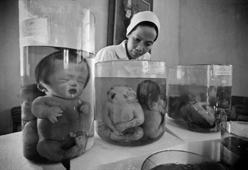 дети уроды. фото